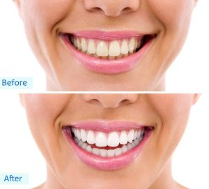 Botox Dentist North York