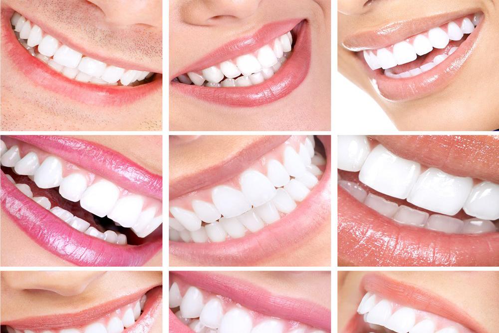 Teeth whitening (Spa Dent)